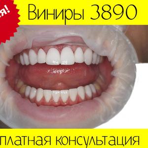 Виниры Киев 3890 грн. по Акции