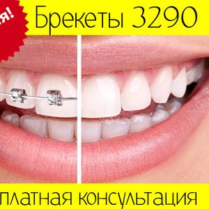 Установка брекетов в Киеве 3290 грн. по акции